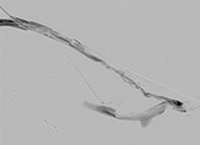 Thrombectomy of Left Brachial Artery-Axillary Vein Graft post-AngioJet