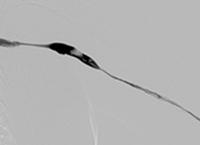 Thrombectomy of Left Brachiocephalic AV Fistula baseline