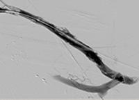 Thrombectomy of Left Brachial Artery-Axillary Vein Graft final result