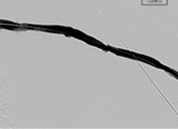 Thrombectomy of Left Brachiocephalic AV Fistula final result