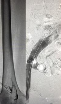 Iliofemoral thrombus pre-treatment