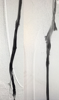 Post ZelanteDVT™  Mechanical Thrombectomy