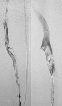 Acute DVT Left Lower Extremity Revascularization pre-treatment angio