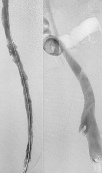 Acute DVT Left Lower Extremity Revascularization post-treatment