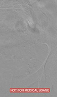 Venous Thrombosis Extending From Popliteal to External Iliac Vein occlusive thrombus