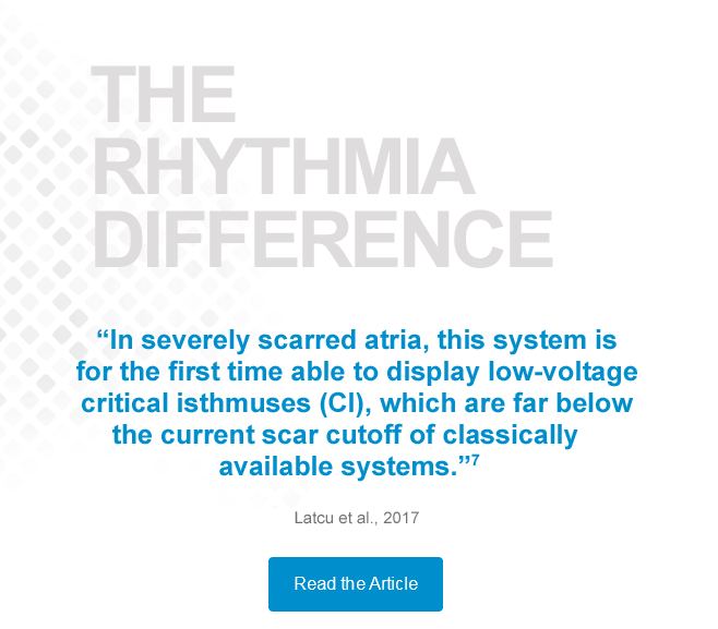 THE RHYTHMIA HDx DIFFERENCE