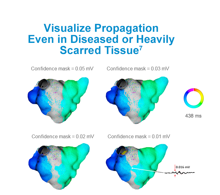 Visualize Propagation Even in Diseased or Heavily Scarred Tissue