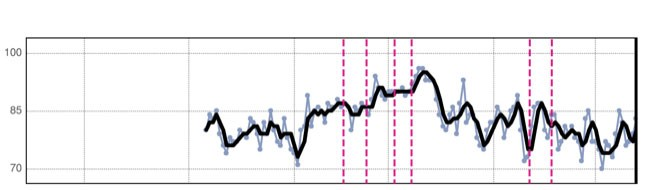 HeartLogic Trend Graph for Mean Heart Rate