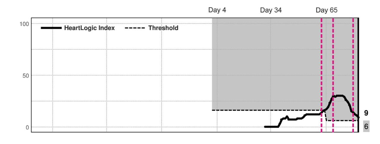 HeartLogic Composite Trend Index Graph
