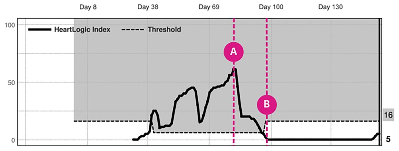 Heartlogic case study chart