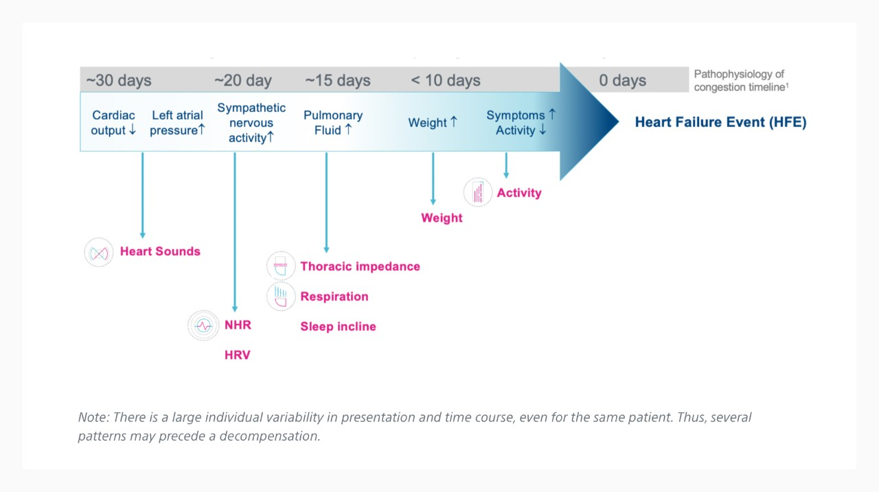 Timeline showing an example time course of heart failure decompensation.