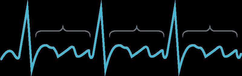 ECG Showing an AT/Atrial Flutter Heart Rhythm