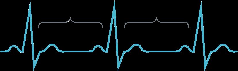 ECG Showing a Heart Rhythm During a Bradycardia Episode