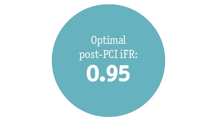 Optimal post-PCI DFR:  0.95