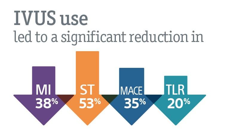 IVUS reduction