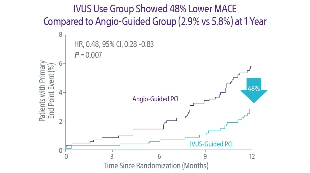 IVUS Use Group Showed 48% Lower MACE
