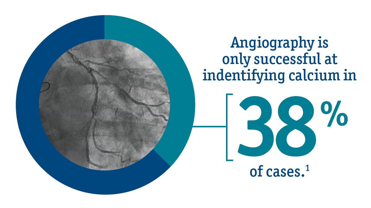 Angiography, for example, is successful at identifying calcium in only 38% of cases – essentially only effective in the most severe cases.