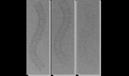 Platinum Chromium (PtCr) Coronary Stent allow for enhanced visibility