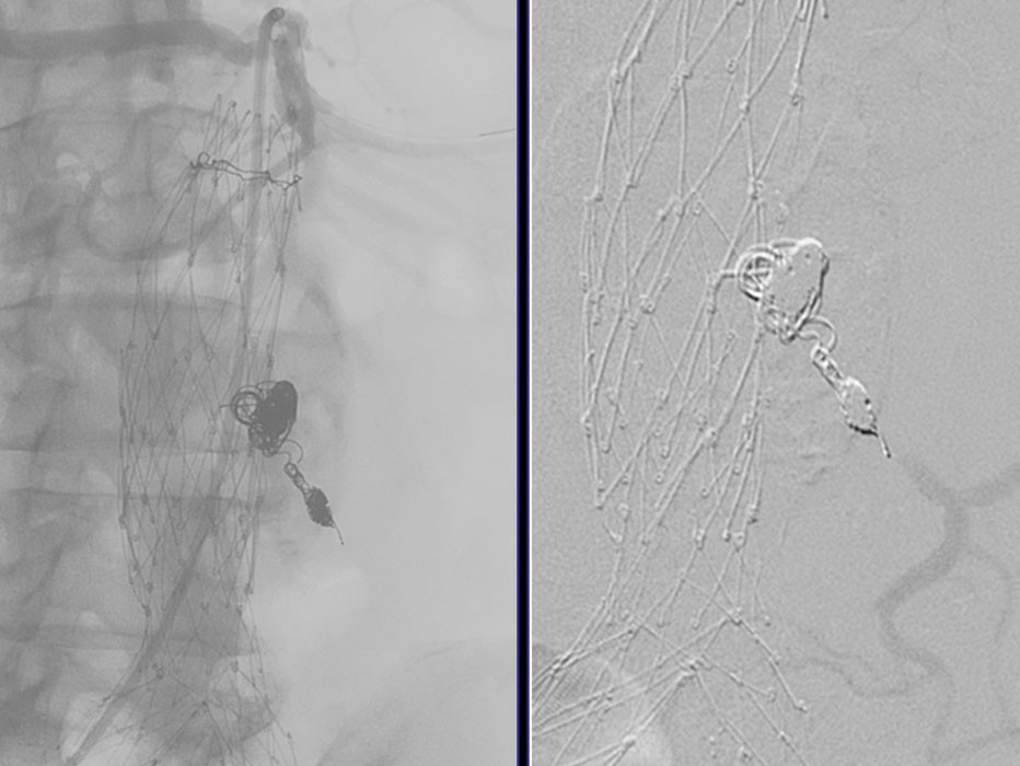 Figure 3. Completion angiography showed a widely patent SMA (A) and IMA distally to the placed coils with absence of residual sac filling (B).