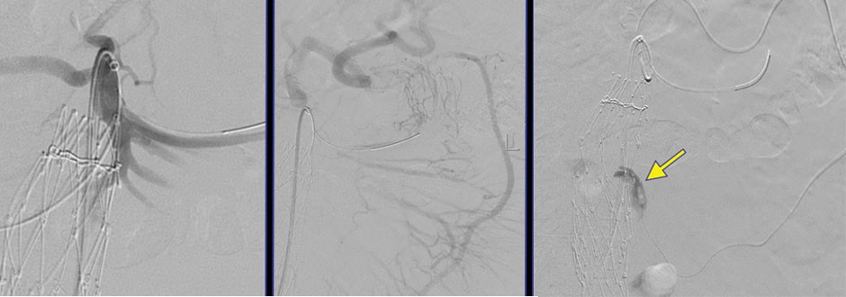 Figure 2. Intraoperative angiography showed placement of a coaxial system within the SMA (A) and identified the large SMA-IMA collateral (B). Successful retrograde navigation through the middle colic artery down to the IMA (C) with confirmation of retrograde flow within the aneurysm sac (arrow).