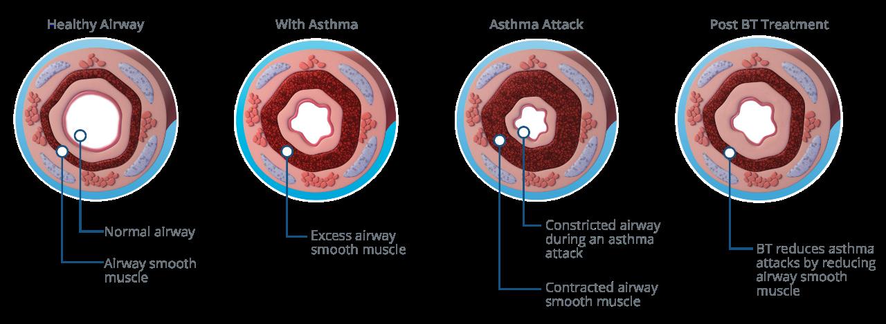 Healthy versus restricted airway graphic