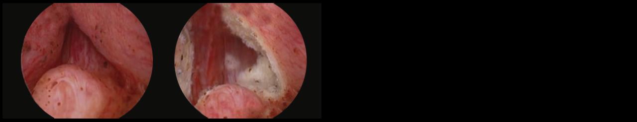 2 scope images. Identifying anatomical landmarks (image shows left ureteral orifice).