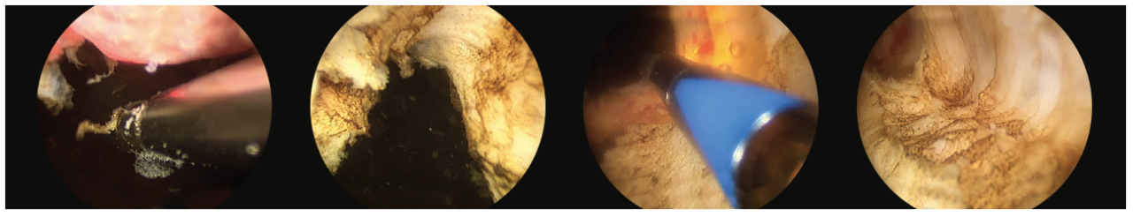 4 scope images. Which are illustrating how to debulk the prostate.
