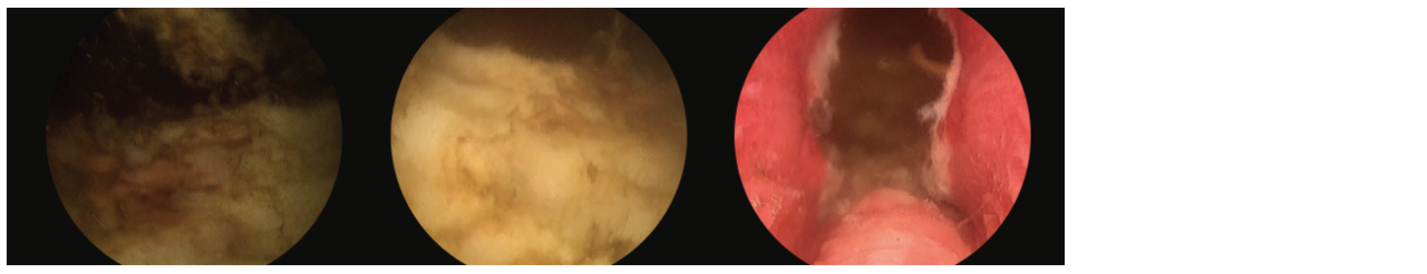 Additional 3 scope images. Identifying verumontanum.
