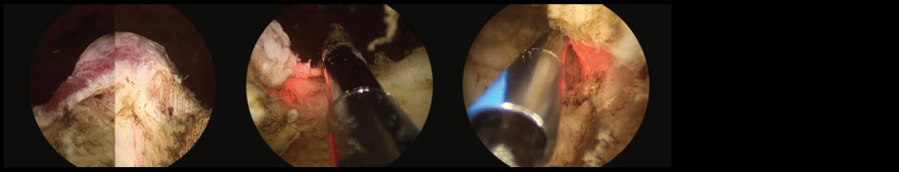 3 scope images. Identifying verumontanum.