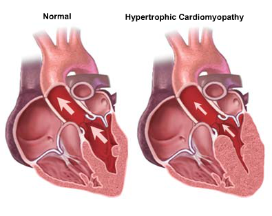 Illustrations of hearts showing a normal and a hypertrophic cardiomyopathy heart