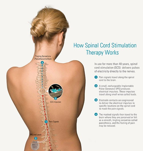 How Spinal Cord Stimulation Works
