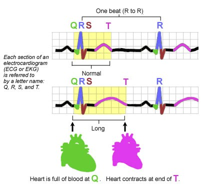 Illustration of Long QT Syndrome, heart rhythms