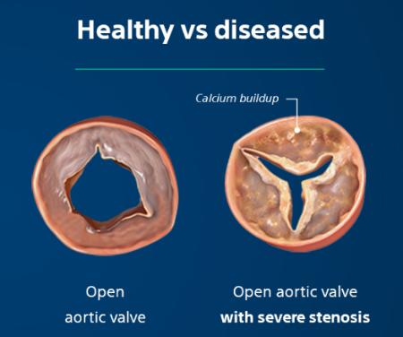 Severe Aortic Valve Stenosis Healthy vs Diseased