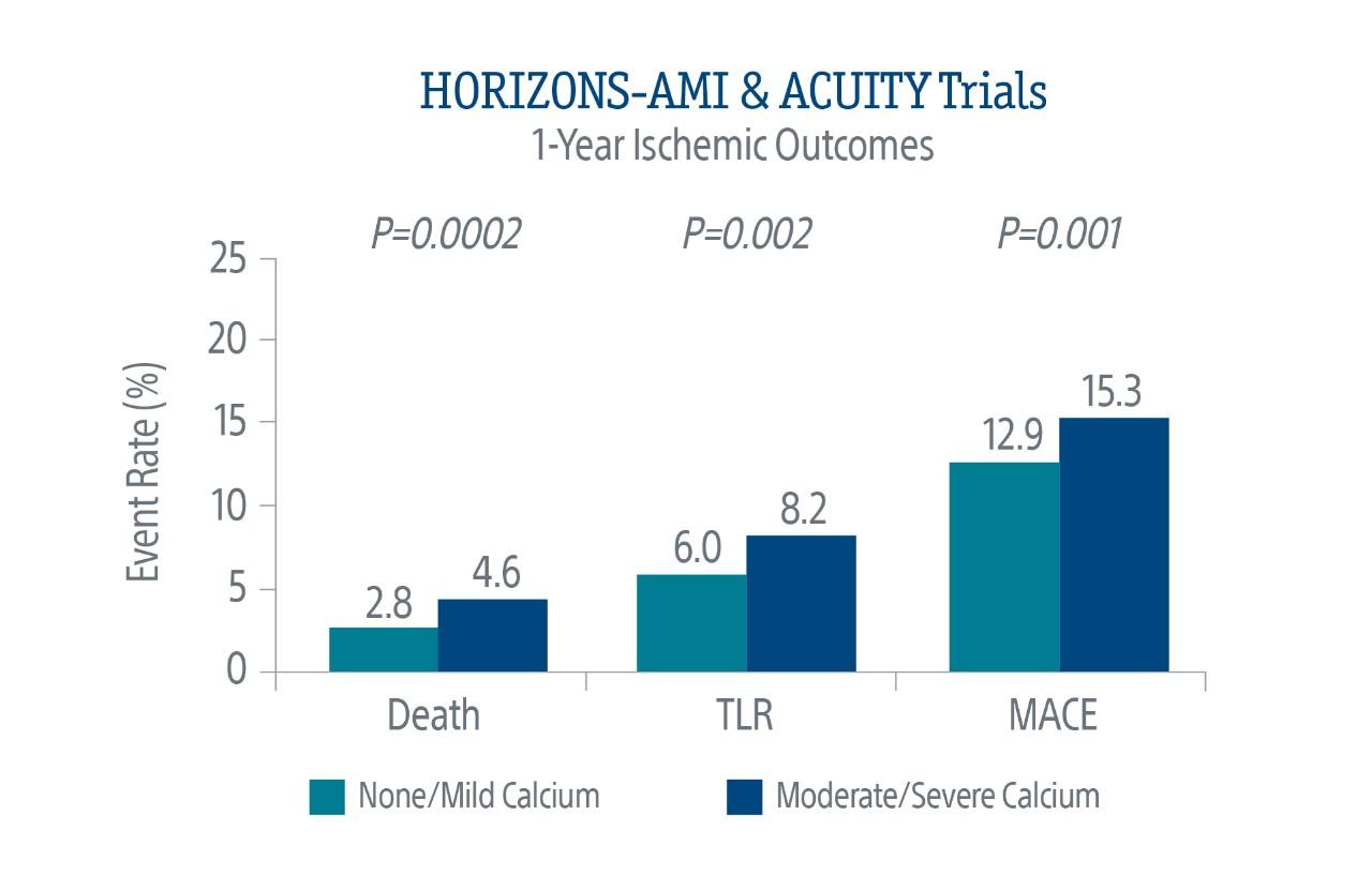 HORIZONS-AMI & ACUITY Trials Chart
