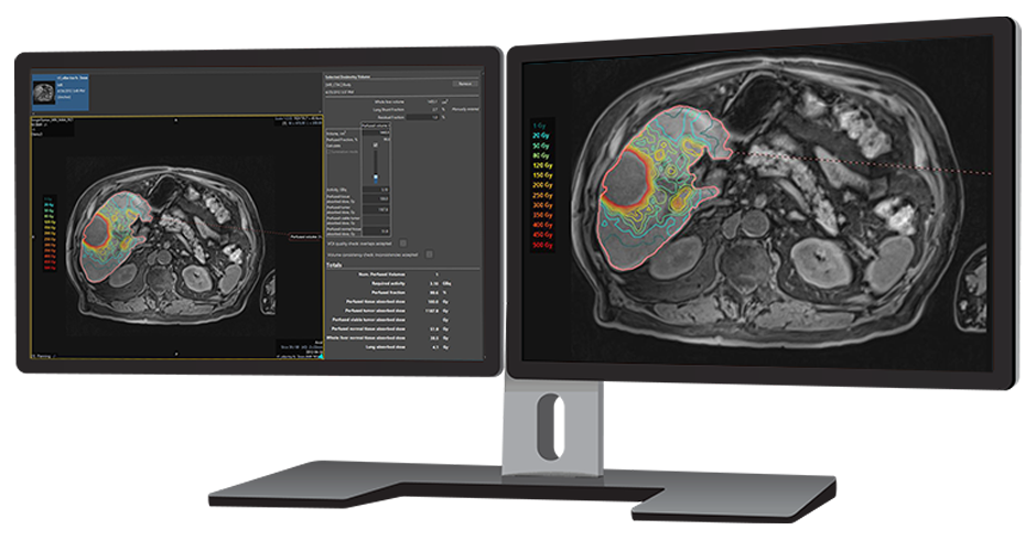 image of monitors displaying Simplicit<sup>90</sup>Y™ software solution for dosimetry planning.