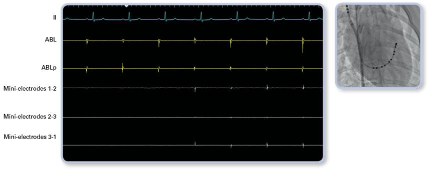 EKG showing InteallaTip MiFi tip entry into right atrium