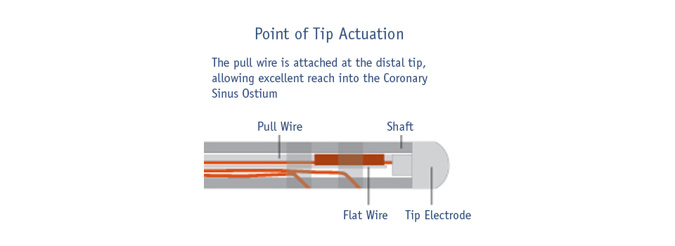 Point of Tip Actuation Image