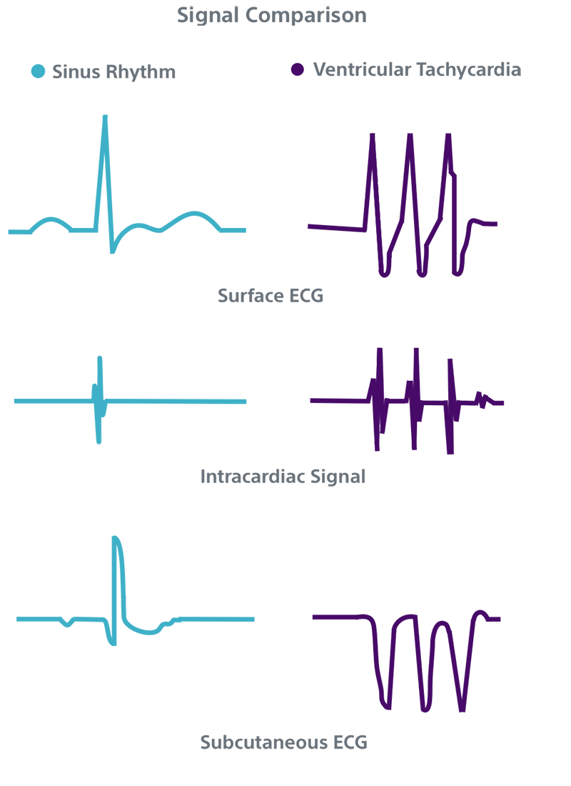 ECG / EKG of subcutaneous signal