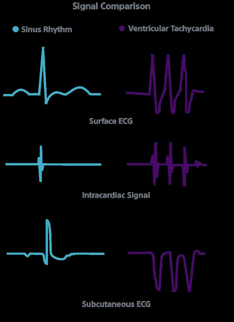 Comparison of sinus rhythm and ventricular tachycardia for surface ECG, intracardiac signal and subcutaneous ECG.