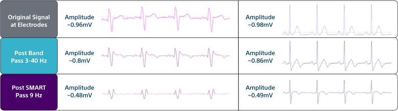 Table showing three filters the EMBLEM MRI S-ICD System uses to help minimize cardiac oversensing.