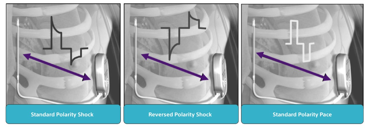 Anatomical illustration of the ribcage showing the EMBLEM MRI S-ICD System's Standard Polarity Shock.