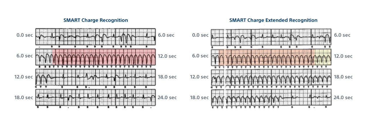 SMART Charge Recognition ECG data for an untreated episode.