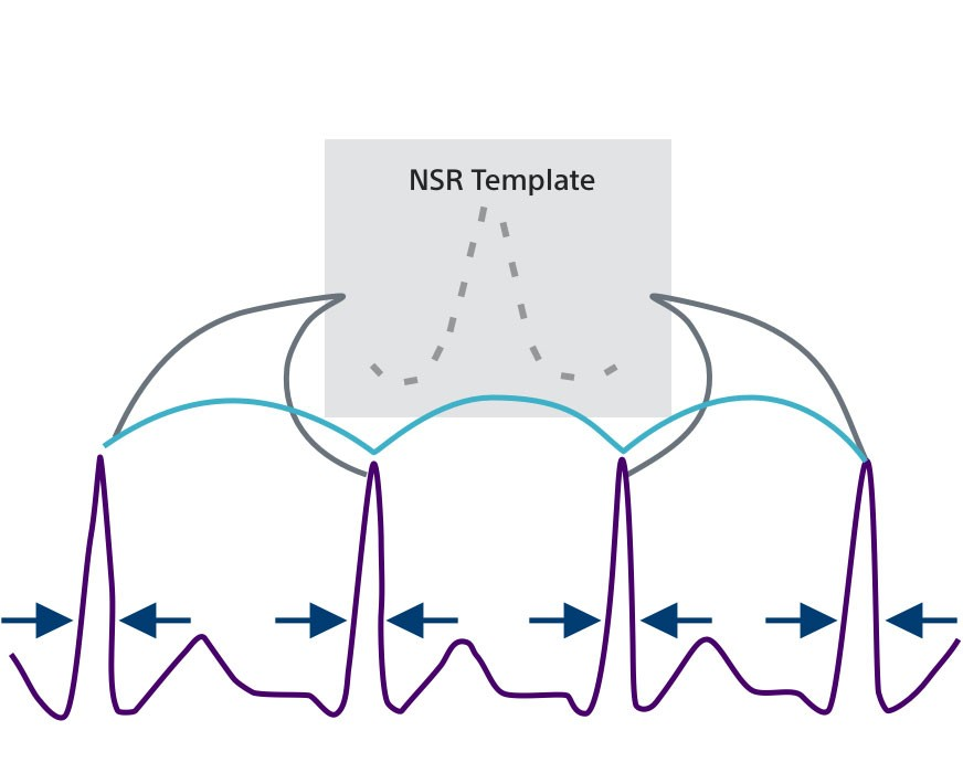Diagram showing how the Normal Sinus Rhythm (NSR) template identifies non-shockable rhythms in the Conditional Shock Zone.