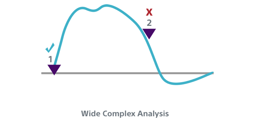 Wide Complex Analysis INSIGHT Technology algorithm.