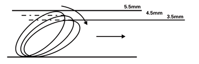 FilterWire EZ System nitinol filter loop