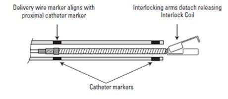 Double Marker Microcatheter