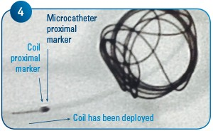 Coil Delivery 4
