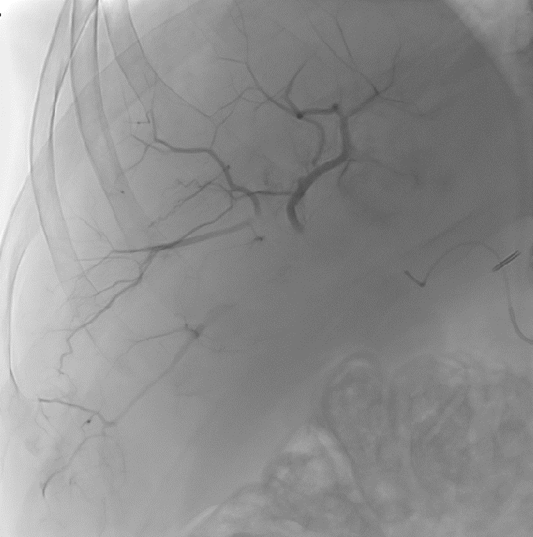 LC Bead LUMI: Middle of Injection