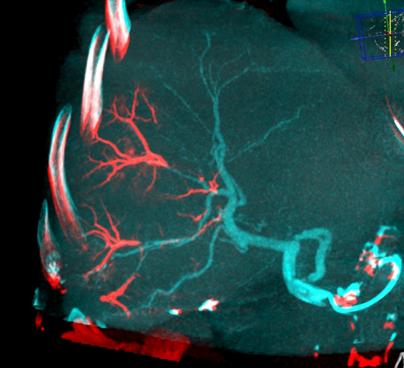 LC Bead LUMI: Embolized vessel clearly seen in red.