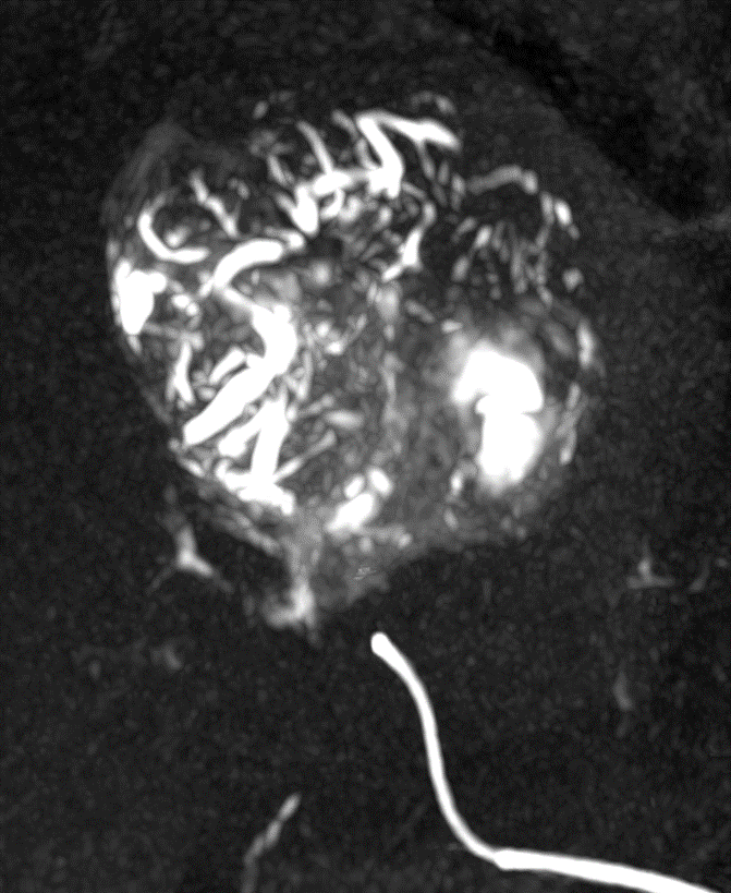 LC Bead LUMI: Vessels filled with beads clearly visible downstream of catheter placement